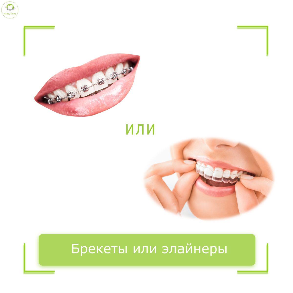 Как незаметно для окружающих сделать красивую улыбку?