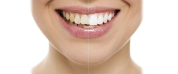 Кто из нас не мечтает о красивой, белоснежной улыбке? 🤔